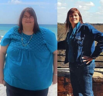 Ep. 203 - Clara - before and after 2015